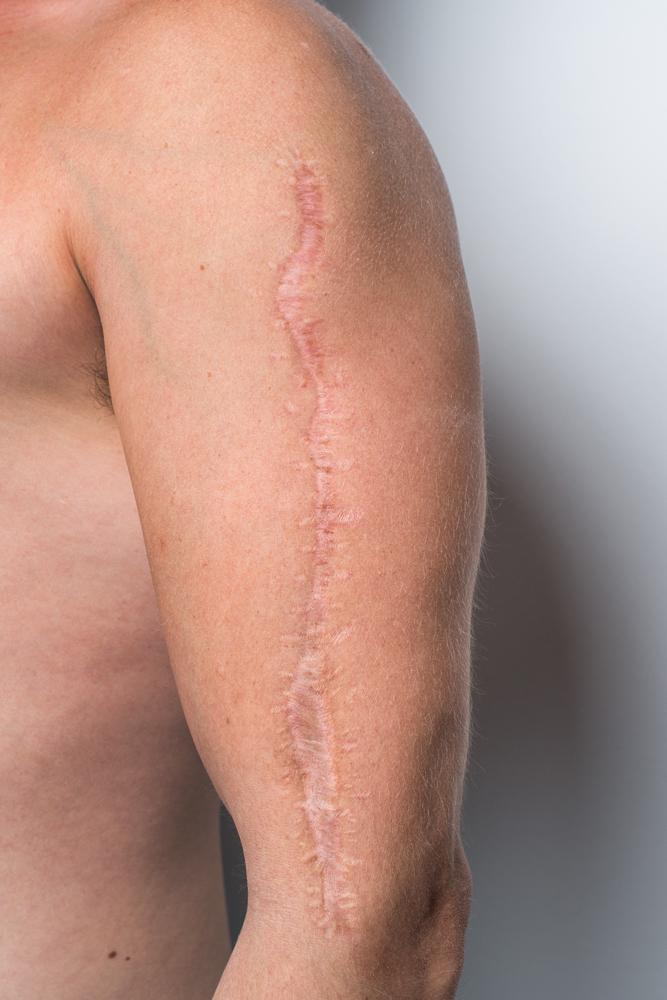 Forsikringssager – fotografering af ar og sår